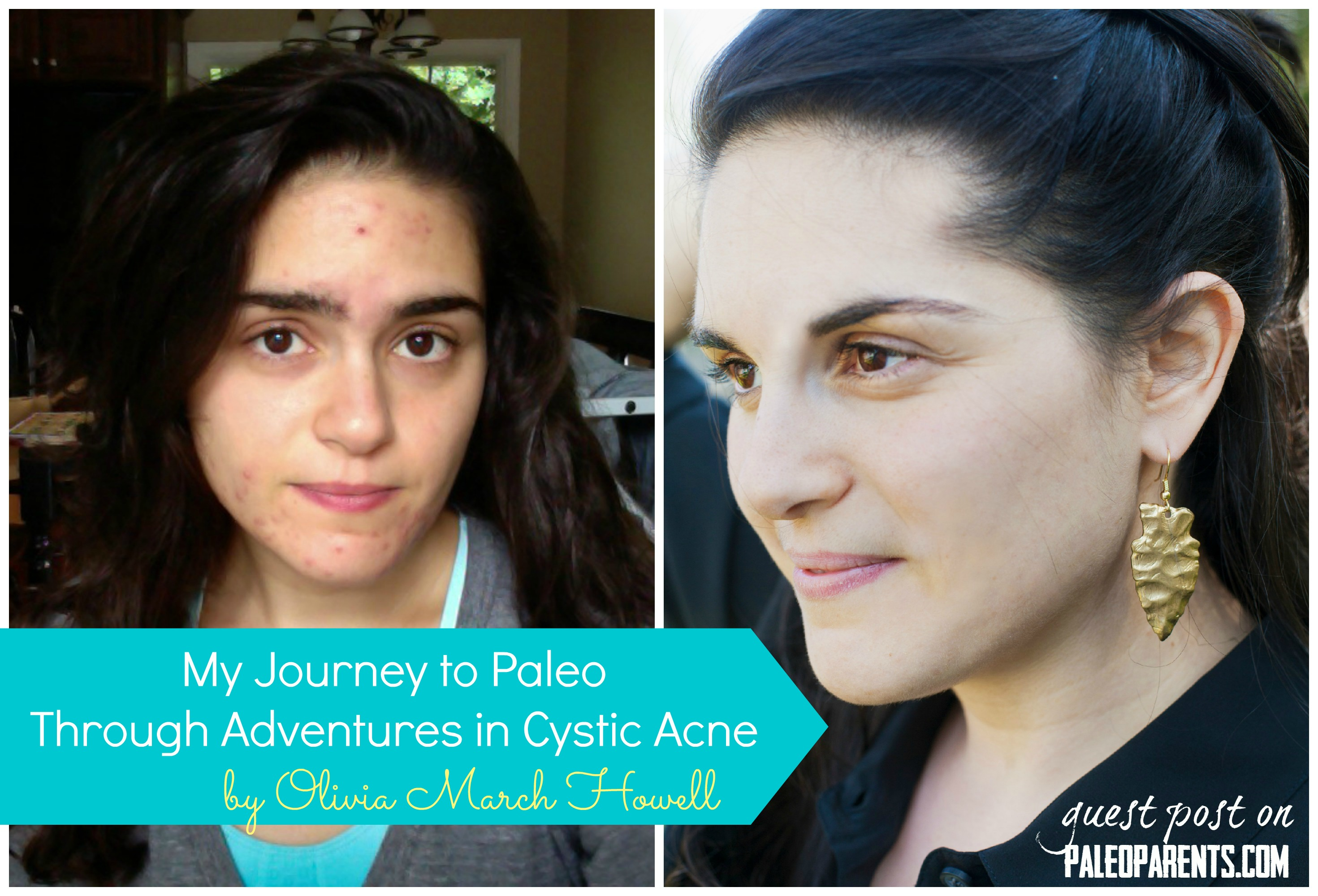 Guest Post: My Journey to Paleo Through Adventures in Cystic Acne
