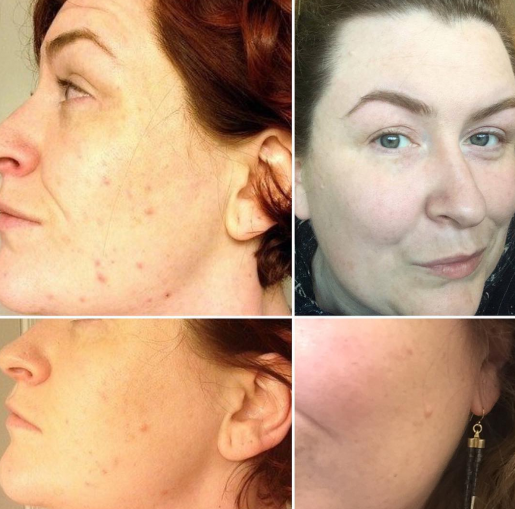 paleo and beautycounter helped adult acne